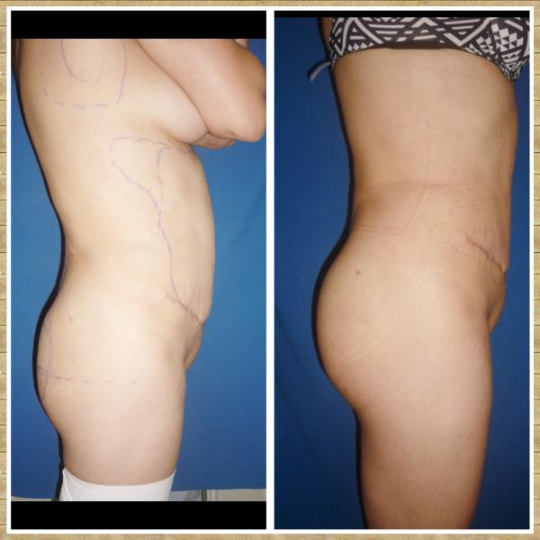 Cirugía Aumento de Glúteos con Grasa