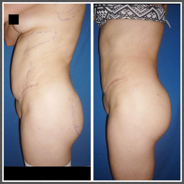 Cirugía de Aumento de Glúteos con Grasa Guatemala
